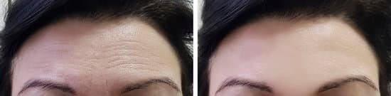 forehead lines botox treatment
