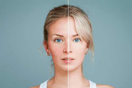 face comparison before and after rosacea treatment