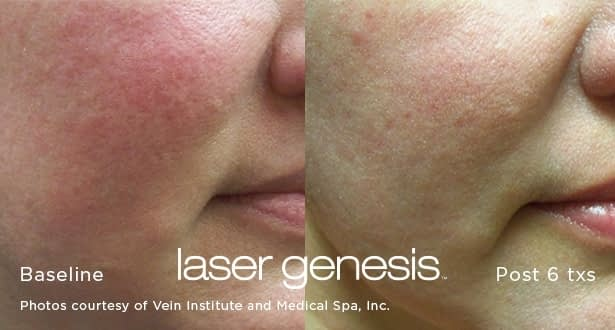 xeo LaserGenesis before and after photo