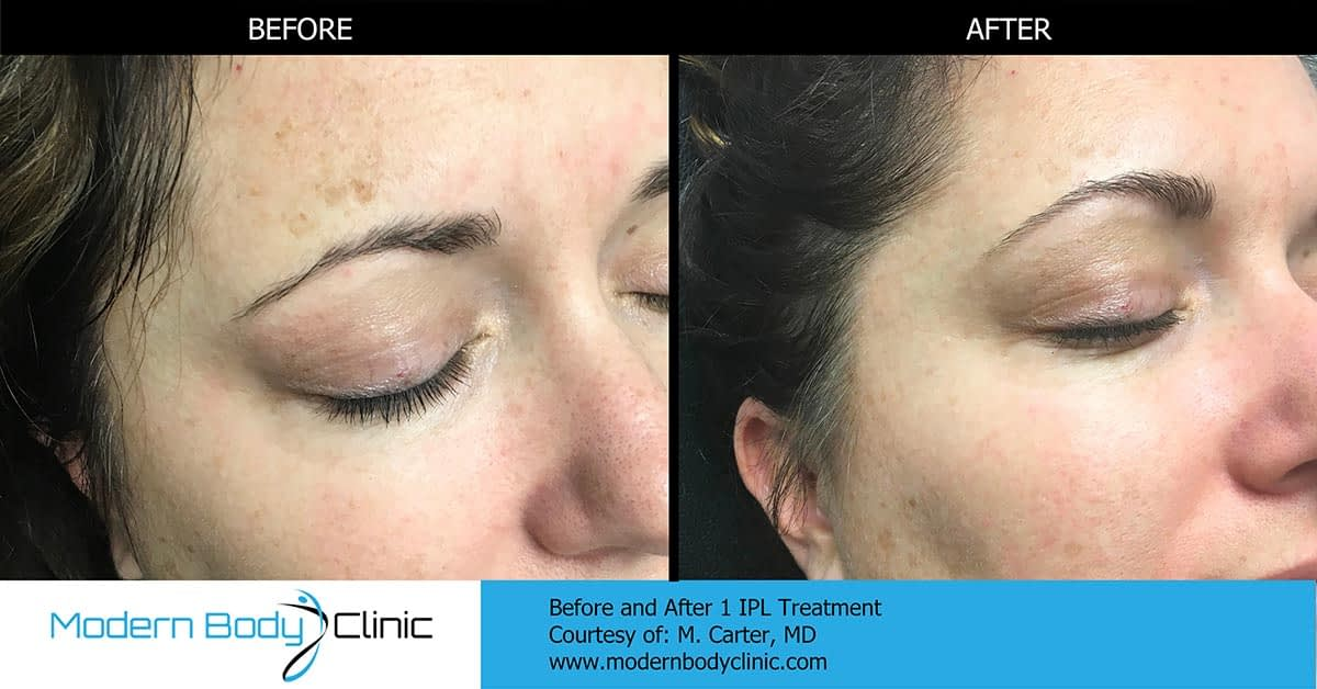 IPL™ photofacial procedure before and after