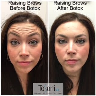 forehead lines botox treatment before and after