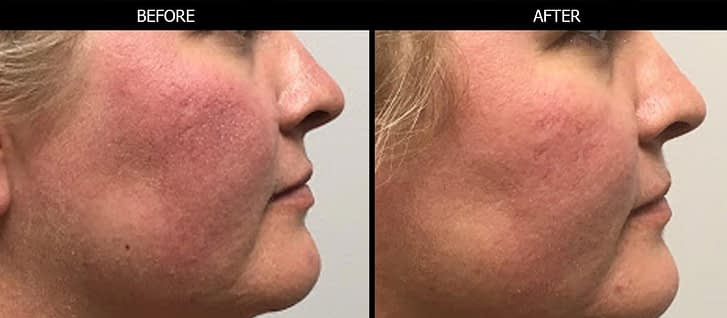 IPL™ photofacial before and after photo